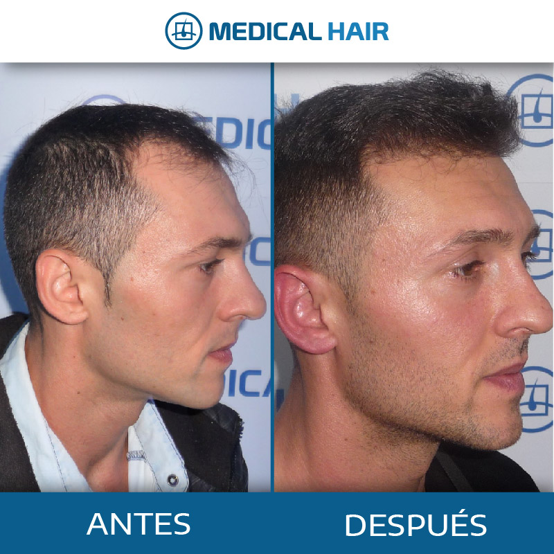 Antes y Después trasplante capilar benidorm