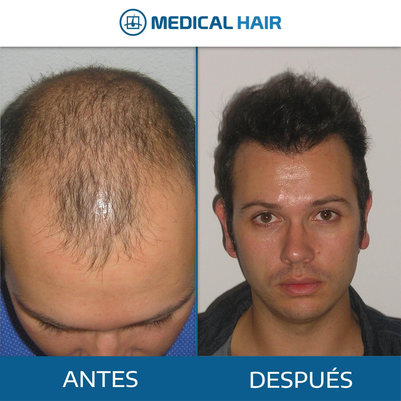antes y después medical hair valencia