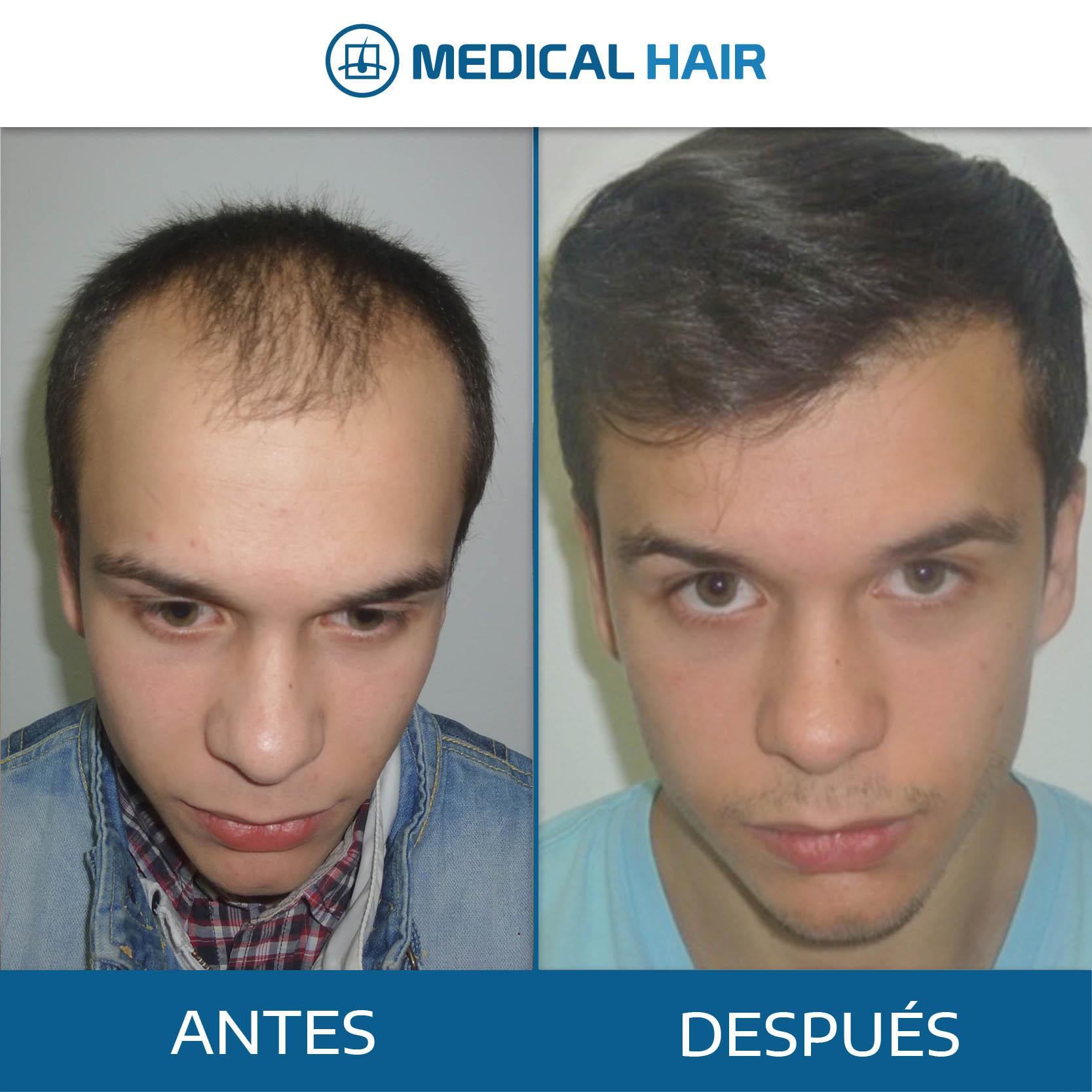 antes y después micro injerto capilar