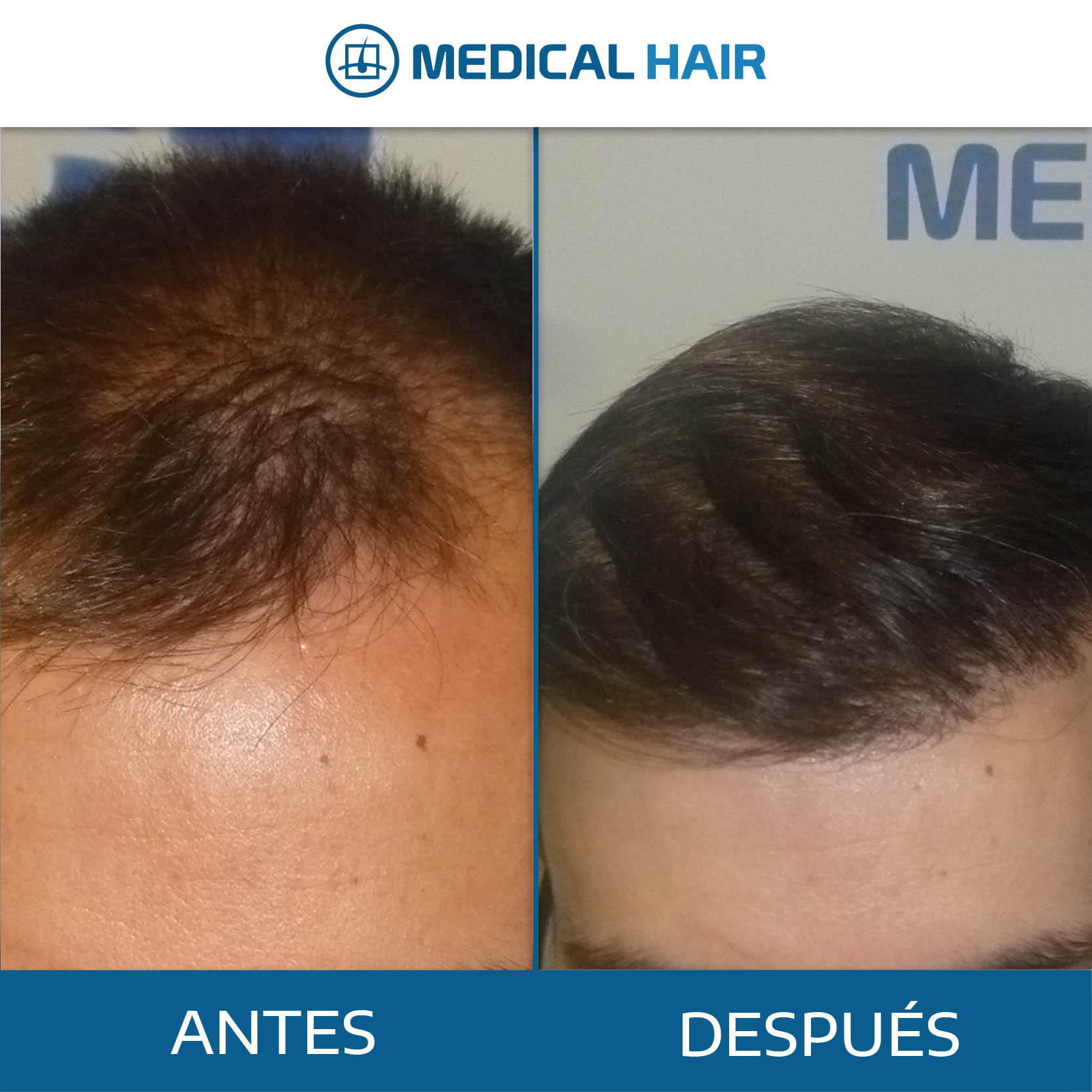 antes y después trasplante pelo valencia